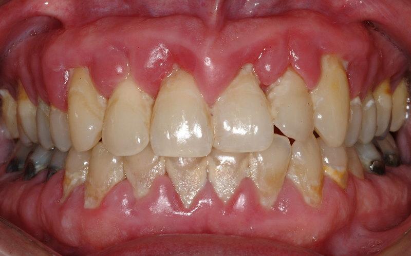 La gingivite - Symptomes fausse couche sans saignement ...